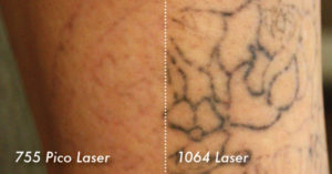 NuMe Metro Daily - PicoSure Tattoo