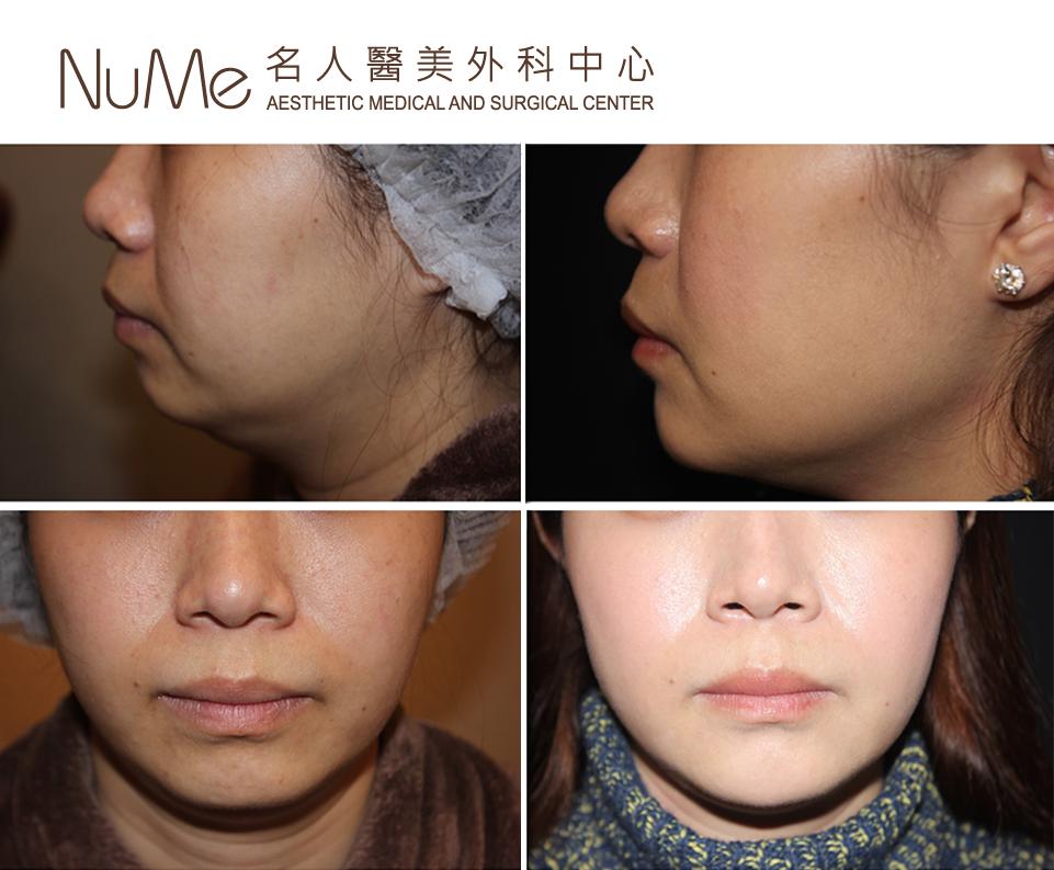 HIFU技術,青春美顏|瘦面療程| 瘦臉療程| v面療程- NuMe醫學美容中心- NuMe